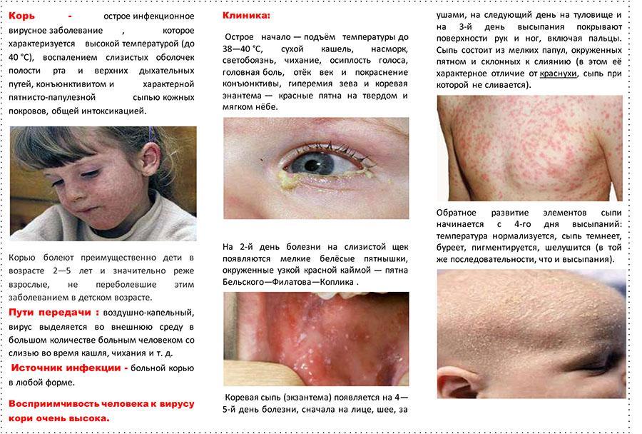 России, курьер пневмония без температуры но с сухим кашлем только